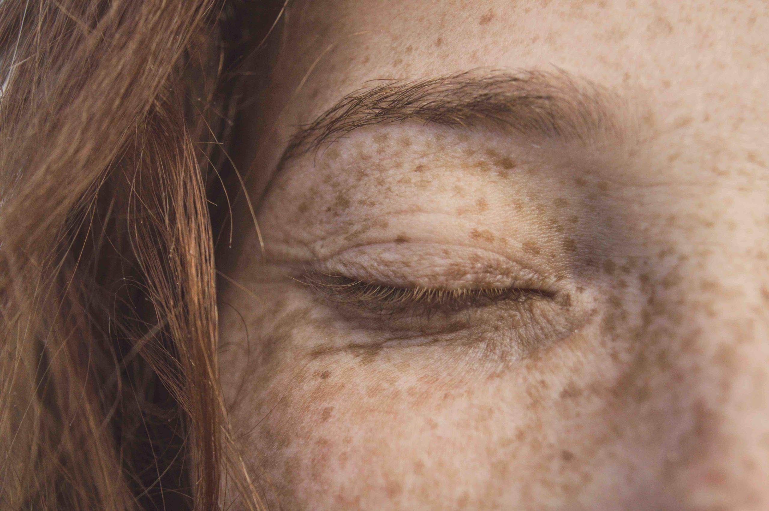 Conférence acné adulte